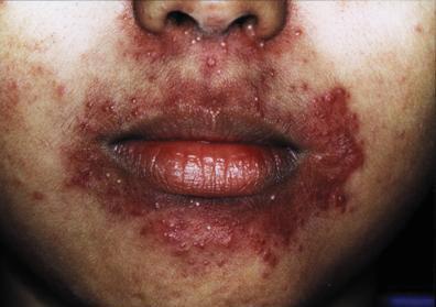steroid acne medscape