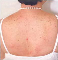erupsi-akneformis-penggunaan-steroid