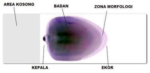Files_of_DrsMed_Zona_sediaan Apus