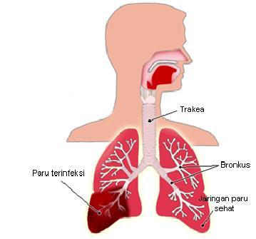 Gambar 1. Pneumonia Pada Dewasa