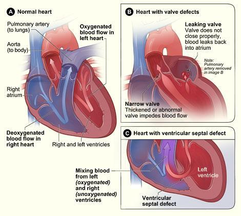 mumur jantung